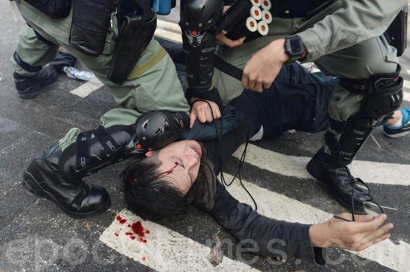 2019年11月12日,香港中大學生被打爆頭。(宋碧龍/大紀元)