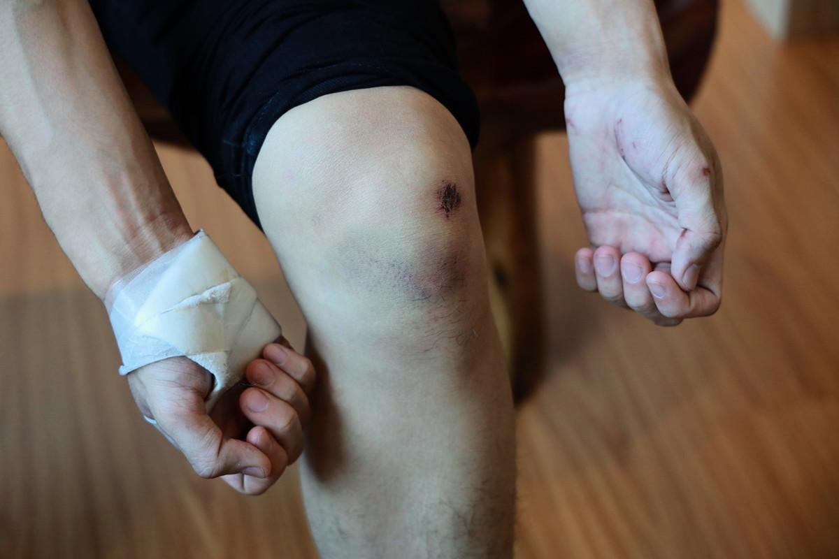 「勇武派」示威者、22歲大學生阿樂。 阿樂展示身上傷勢,憶述遊行結束後被身邊假扮示威者的警察追捕並逃走的過程。(王偉明/大紀元)