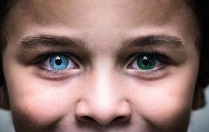 美國母子患罕見眼疾 瞳孔呈雙色異常美麗