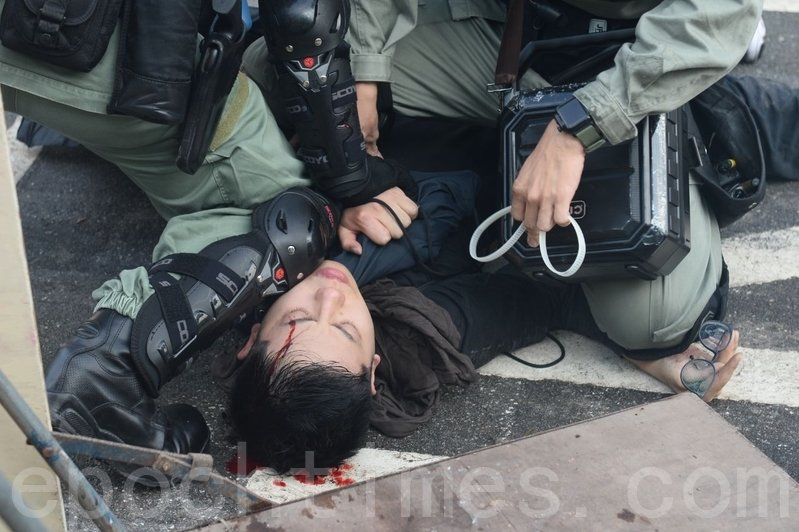 香港警隊原本被稱為「亞洲第一警隊」,如今已名聲掃地,被港人怒斥為「黑警」,警民之間出現嚴重裂痕。圖為11月12日,港人「三罷」行動。香港中大學生被港警打爆頭流血。(宋碧龍/大紀元)