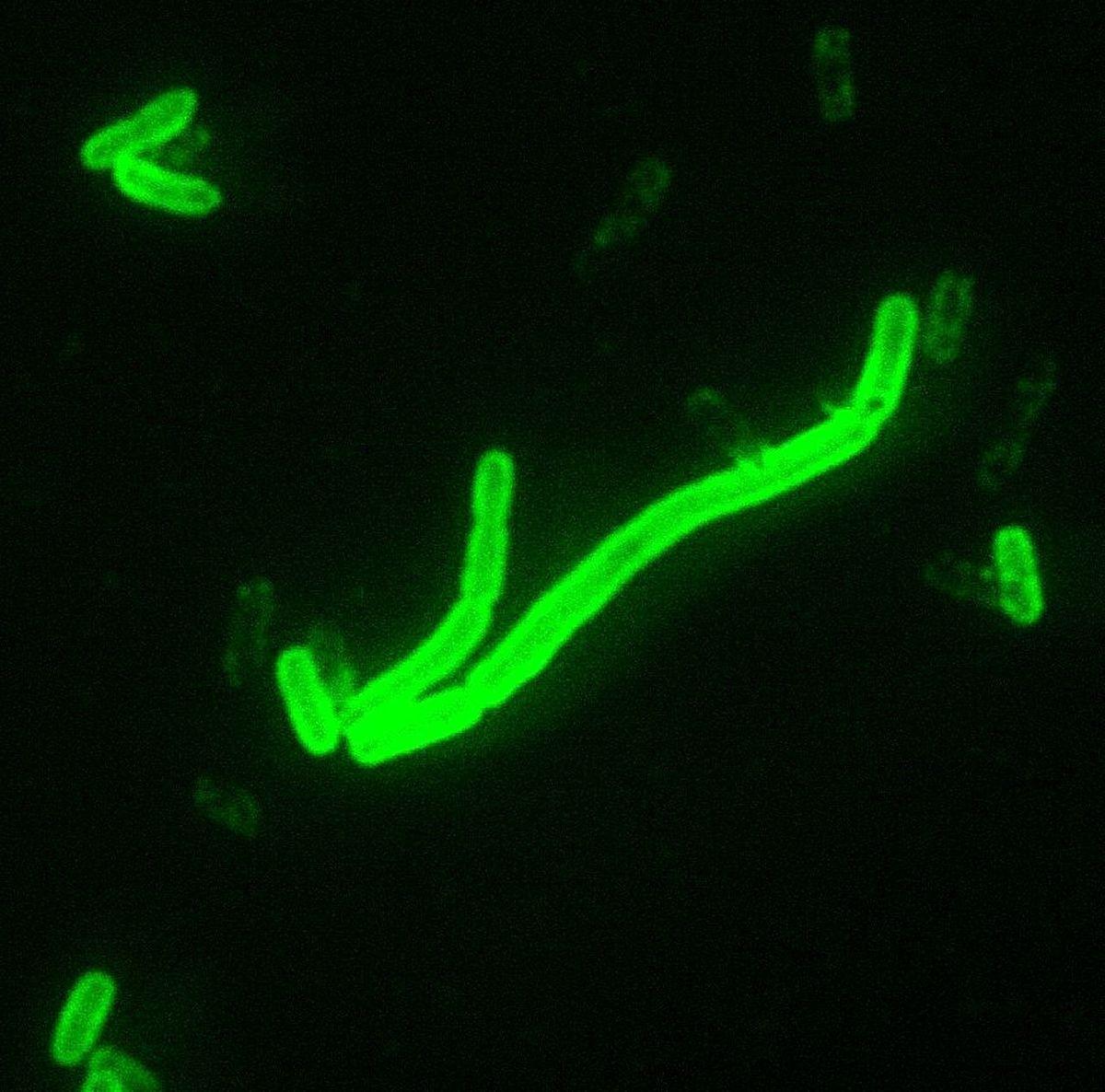 放大200倍的葉赫森氏鼠疫桿菌。(CDC/ Courtesy of Larry Stauffer, Oregon State Public Health Laboratory)