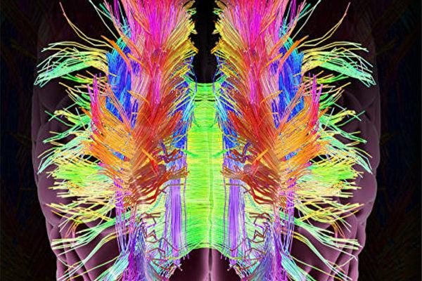 大腦複雜的神經分佈示意圖。(ShutterStock)